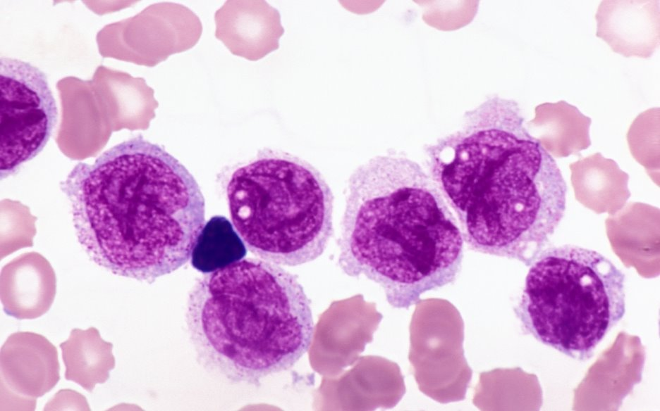 A close-up image of a blood sample taken from a leukemia patient. Notice the large amount of white blood cells, and their relative immaturity (Immature white blood cells have a much larger purple area than mature ones)