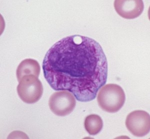 apl faggot cell1 300x278 Faggot cell in acute promyelocytic leukemia