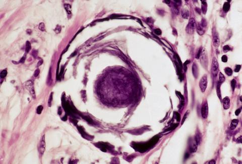 papillary thyroid ca single psammoma body Dystrophic vs. metastatic calcification