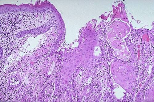 Squamous cell carcinoma, well-differentiated