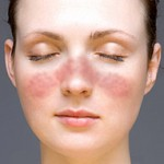 Lupus facial rash