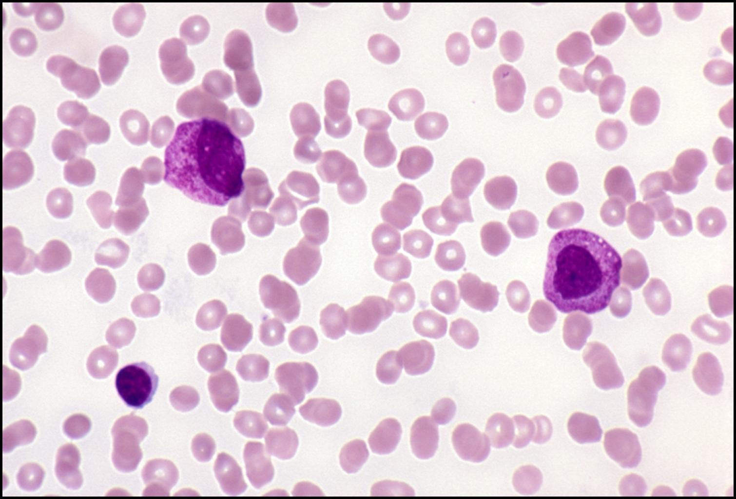 AML Acute leukemia quiz