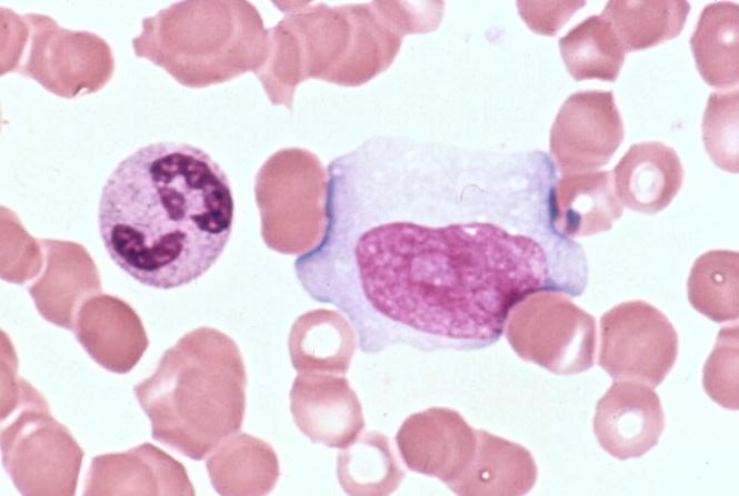 Downey 3 Mono vs. acute leukemia