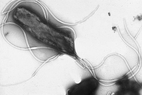 HpyloriEM H. pylori: How does it do it all?