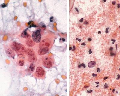 tumor diathesis How can you tell if carcinoma is invasive on a Pap smear?