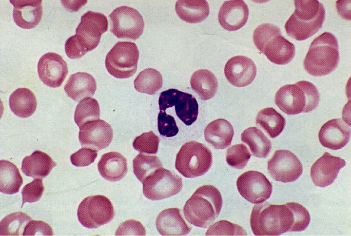 dysgranulopoiesis Myelodysplasia: not quite leukemia