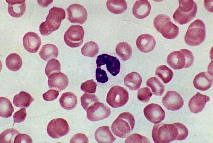 dysgranulopoiesis Myelodysplasia: not quite leukemia