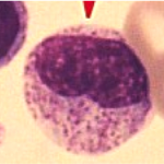 myelocyte 150x150 Does differentiated mean it looks different?