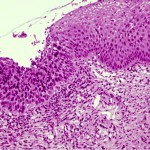 dysplastic v normal