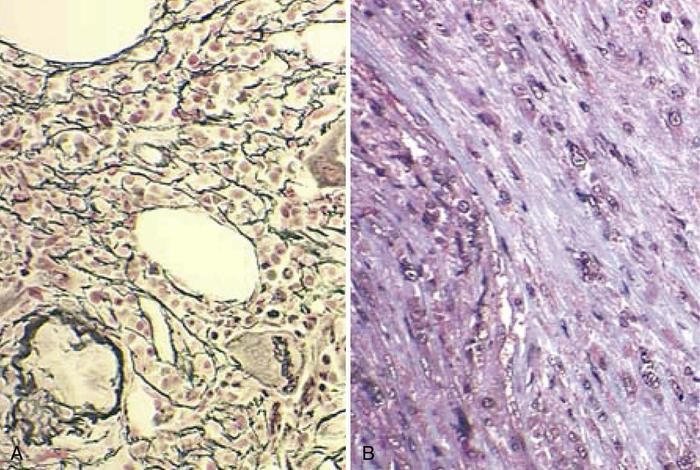 Reticulin vs. collagen fibrosis