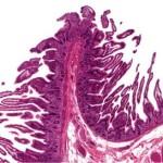 Small intestine thumbnail