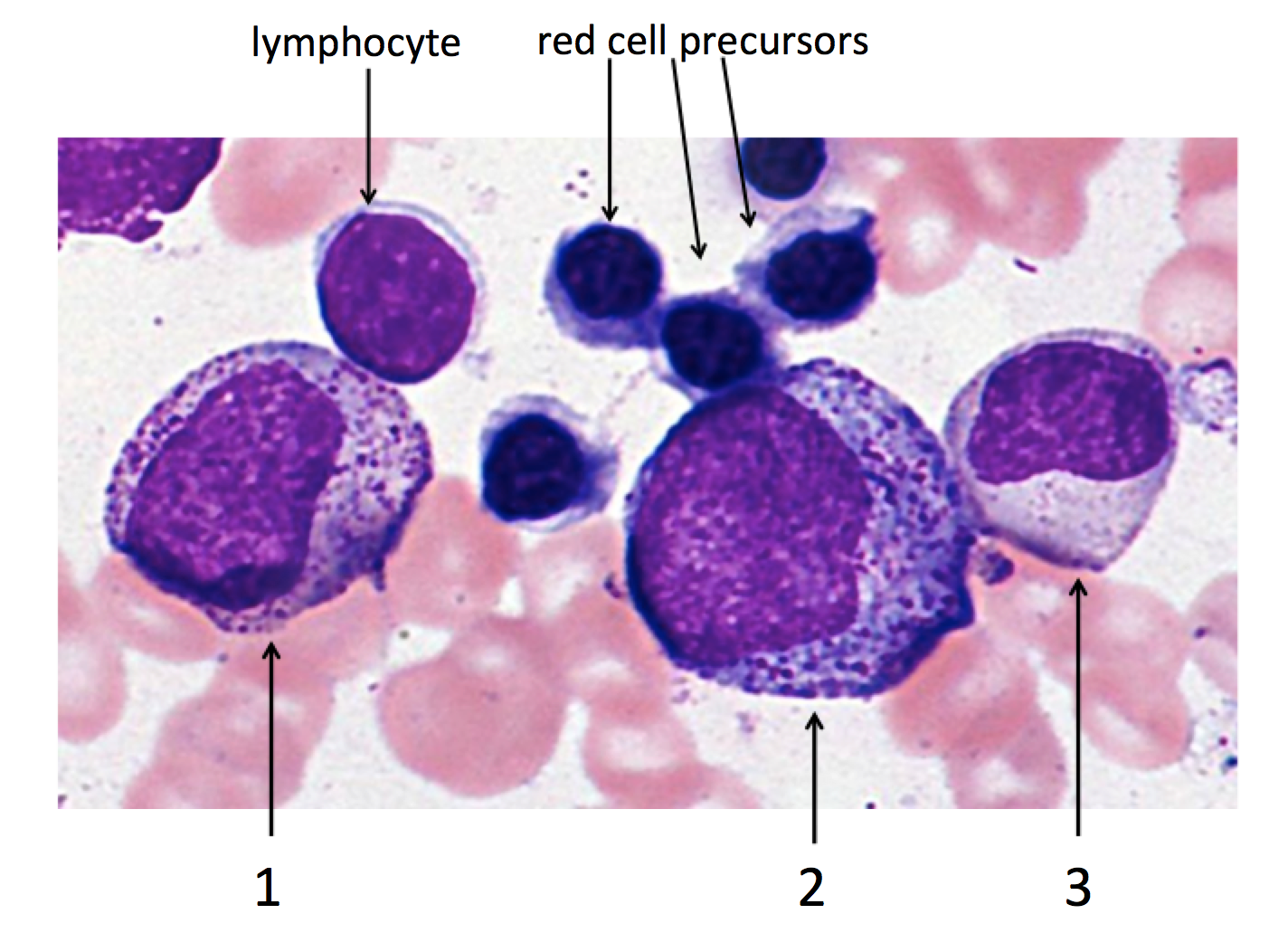 How to tell a promyelocyte apart from a myelocyte